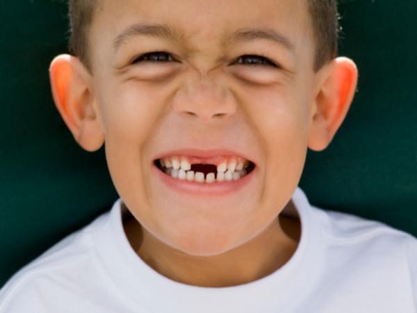 Nằm mơ thấy gãy răng có ý nghĩa gì, đánh con gì ăn chắc